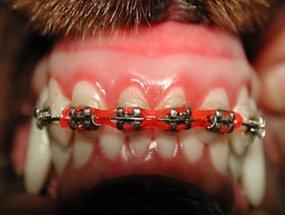 Aparelho ortodôntico utilizado para fechar o espaço entre os dentes.