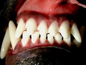 Aspecto final dos incisivos mordendo em tesoura (dentes superiores a frente dos inferiores) após tratamento ortodôntico.