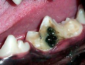 Defeito em esmalte no primeiro molar inferior esquerdo. Indicado restauração em resina.