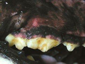 Fratura do dente 4° pré-molar superior direito.