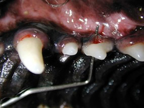 Sondagem periodontal do 2° pré-molar superior.