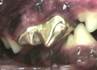 Dor de dente Pet restauração metálica