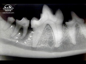 Radiografia intra-oral do 1° e 2° molares inferiores.