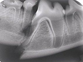 Fraturas de mandíbula